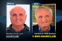Hair Club – Infomercial