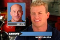 Hair Club – Stop Hair Loss